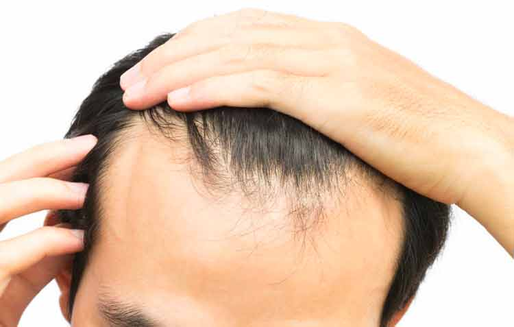 minoxidil for receding hairline