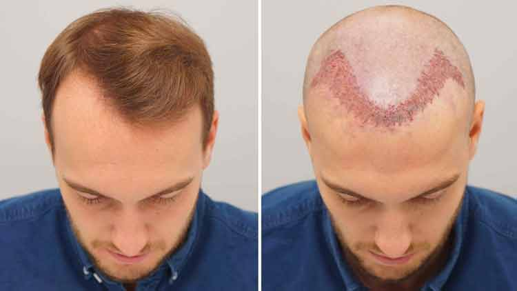 hair transplant for receding hairline